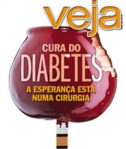 Cirurgia do Diabetes em Curitiba